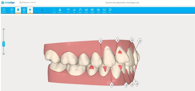 Software de Invisalign