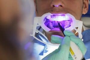 Dolor de dientes al colocar brackets