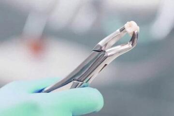 Cirugía para extraer la muela del juicio