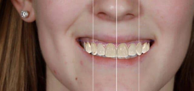 Mock up diseño de sonrisa