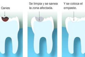 Pasos del empaste dental