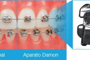 comparativa brackets damon