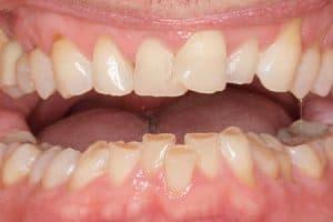 Qué efectos tiene el bruxismo para tu boca