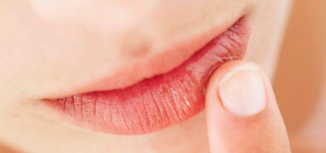 Efectos de la boca seca