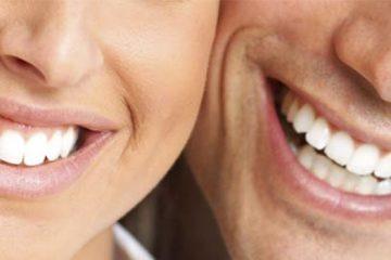 Retenedores necesarios después de la ortodoncia