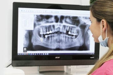 Cuidar implantes dentales