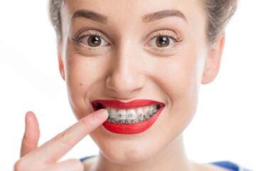 ¿Acabas de comenzar un tratamiento de ortodoncia? 7 consejos que debes seguir