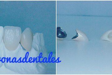coronas dentales de zirconio precio