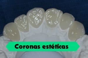coronas zirconio esteticas