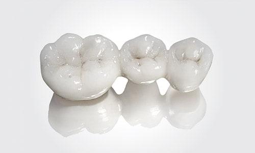 Ortodoncia con puente dental