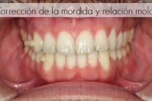 alineacion ortodoncia brackets