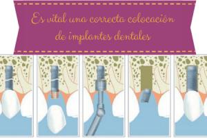 correcta colocacion implantes