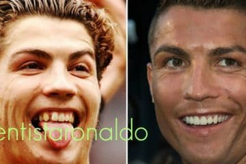 antes y despues ronaldo