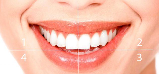 Los cuatro cuadrantes de la boca