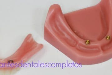 implantes dentales completos madrid