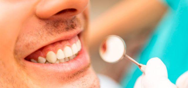 Cómo cuidar las prótesis dentales