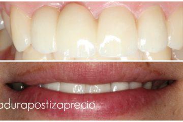 dentadura postiza con implantes