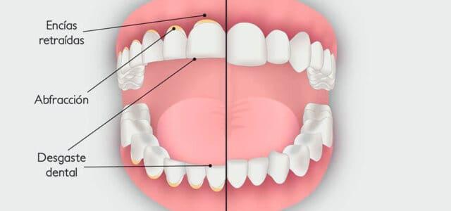 desgaste dental pro bruxismo