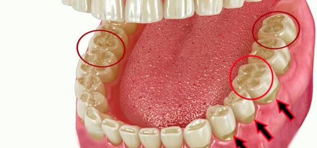 desgaste de dientes
