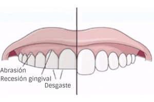 Qué perjuicios tiene el bruxismo para la salud dental