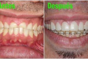 desgaste dental soluciones