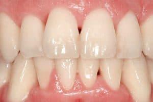 Destrucción papilas interdentales por periodontitis