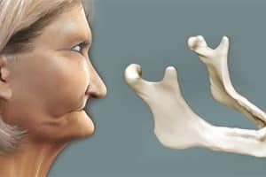 Pérdida de hueso maxilar