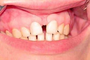 Diastema por frenillo del labio superior