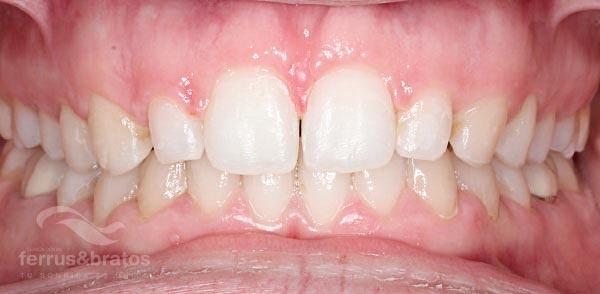 Caso de éxito de tratamiento con ortodoncia invisible Invisalign