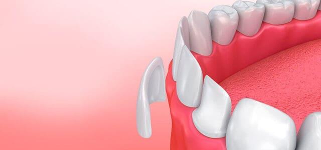 Arreglar un diente roto delantero