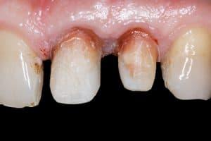 Diente tallado para colocar puente dental