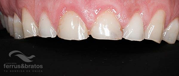 Caso de éxito dientes desgastados