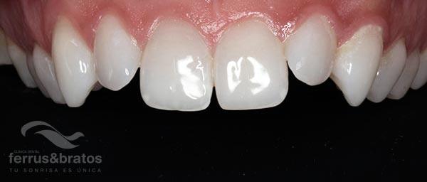 Caso tratamiento de carillas dientes desiguales