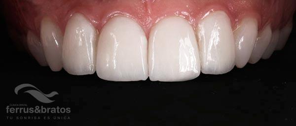 Resultado tratamiento de carillas dientes desiguales