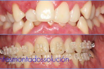 dientes montados con brackets