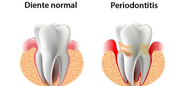 Encía con periodontitis