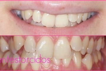 dientes torcidos tratamiento