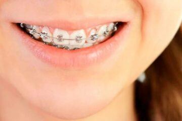 Tratamiento con ortodoncia
