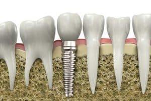 Raíces dientes molares