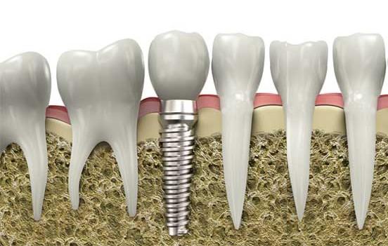 Resultado de imagen de osteointegracion de implantes dentales