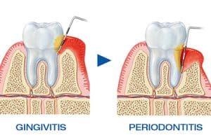 Estados de la enfermedad periodontal