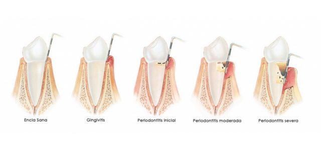 Enfermedades periodontales: gingivitis y piorrea