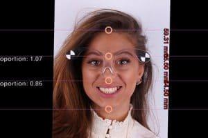 Diseño digital de sonrisa con carillas