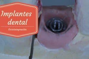 dolor tras implantes dentales