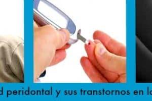 periodontitis salud dental