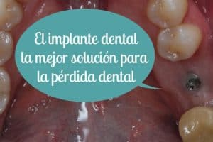 mejor implante dental muela