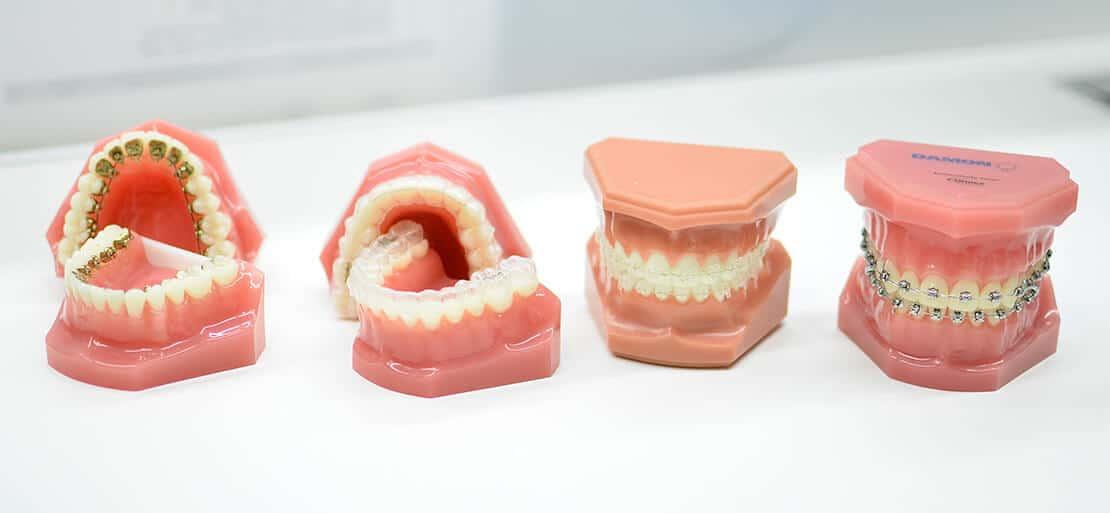 cuanto+cuesta+un+implante+dental+en+uruguay