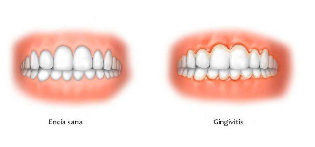 La gingivitis irrita la encía