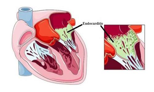 endocarditis-infecciosa-odontologia-encias