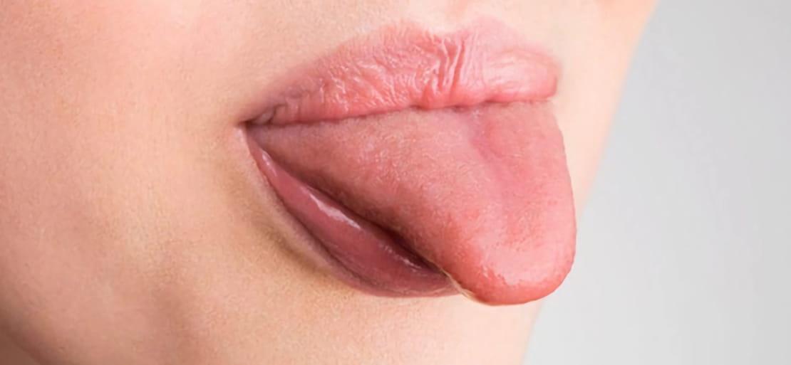 venas debajo de mi lengua hinchadas
